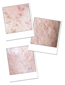 example of acne scars