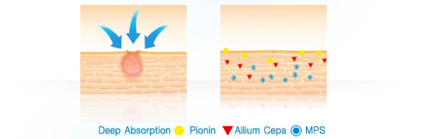 deep absorption to cure acne