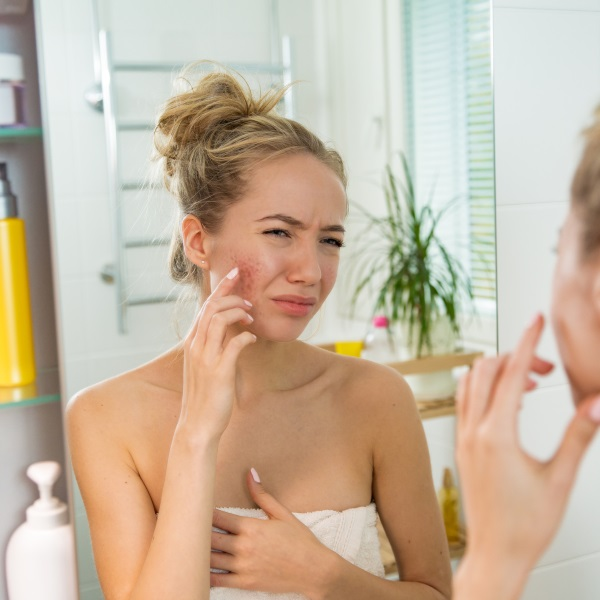 a girl is stress about her acne scars